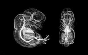 embrionara